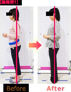 骨盤矯正・姿勢矯正ビフォーアフター施術例1