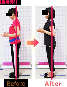 骨盤矯正・姿勢矯正ビフォーアフター施術例2