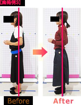 骨盤矯正・姿勢矯正ビフォーアフター施術例3