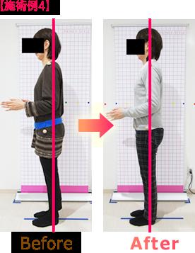 骨盤矯正・姿勢矯正ビフォーアフター施術例4