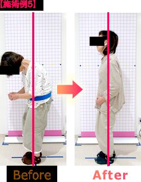 骨盤矯正・姿勢矯正ビフォーアフター施術例5