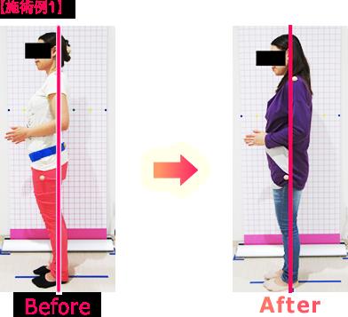 産後骨盤矯正・引き締めビフォーアフター施術例1