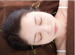 美容鍼を受ける女性の写真