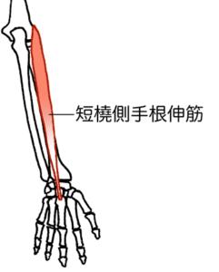 津市のテニス肘治療の説明